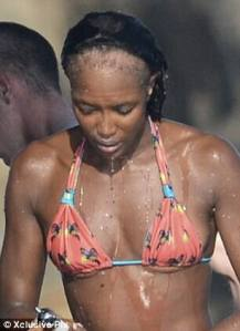 Naomi Campbell with suspected Traction Alopecia